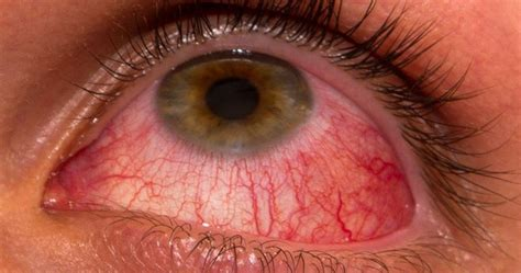 Pink Eye (Conjunctivitis), Causes, Symptoms, Treatment and
