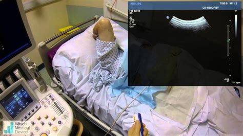 Google Glass used to assist ultrasound liver biopsy - YouTube