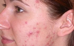 Acne Scar and Rosacea Treatment Manchester, Cheshire