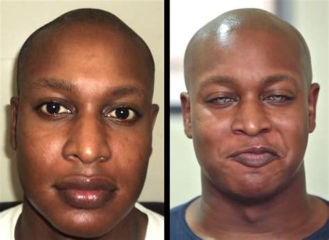 SAD or PRETTY? Man surgically changes EYE COLOR from brown