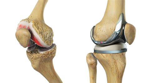 Cost involved in knee replacement | Life Cares