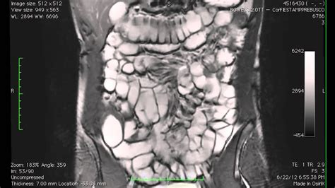 Cine MR imaging of the small intestine in a case of bowel