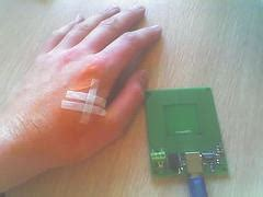 RFID implant turns scientist into a walking computer virus