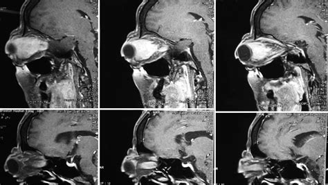 A large primary orbital lymphoma with proptosis: A case