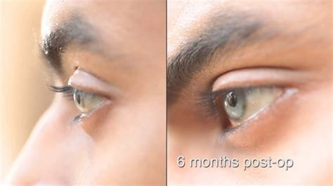 Eye color change surgery 6 months post op brightocular