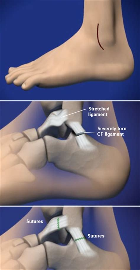 Lateral Ankle Ligament Reconstruction | Central Coast