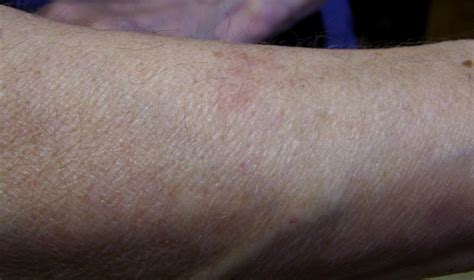 Observations on Development of Cutaneous Lesions from