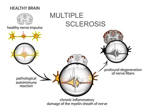 Multiple Sclerosis: Symptoms, Diagnosis, and Treatment