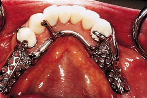 All-ceramic surveyed crowns for removable partial denture