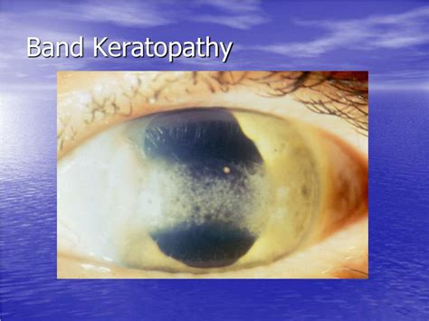 PPT - Corneal Dystrophies and Degenerations PowerPoint