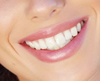What Is Gum Contouring & Reshaping?   Procedure & Recovery