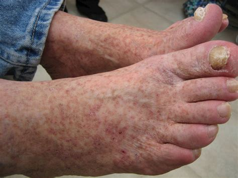 Varicose Veins   Causes and treatment options   MyFootShop