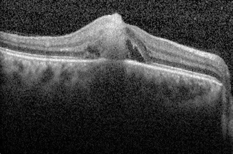 Sub-retinal abscess as presenting feature of endogenous
