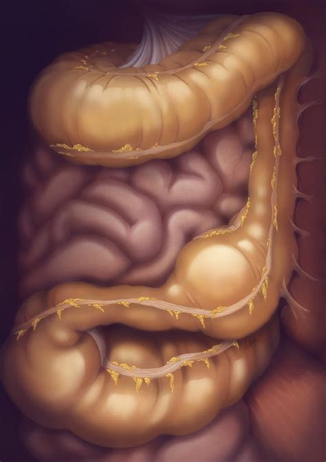 Large Intestine with Constipation by Alexandra Baker at