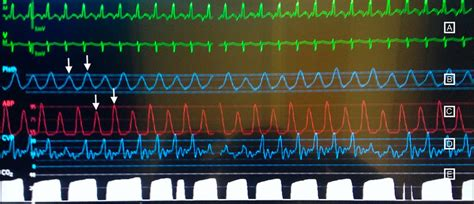 Pulsus alternans: a visual clue to a grave disorder!   BMJ