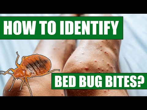 Your Unwanted Bedmate: Bed Bugs