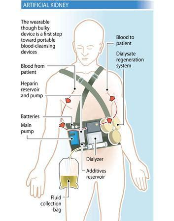Wearable kidney device may free dialysis patients   R